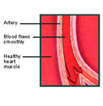 artery1 Dr. Linus Pauling On Removing Plaque From Your Arteries Naturally