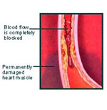 artery4 Dr. Linus Pauling On Removing Plaque From Your Arteries Naturally